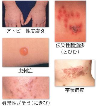 湿疹 違い 疥癬